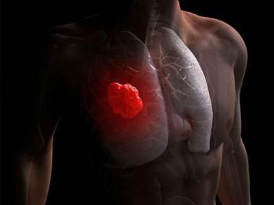 """身體這一處""""痛"""",是癌症前兆!多數人都會輕視"""