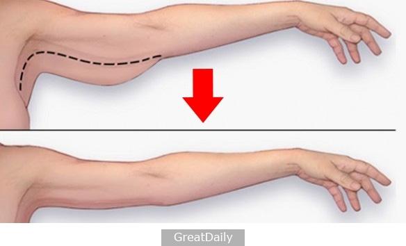 就十五分鐘瘦三吋!減手臂肉最快速的方法....贅肉全消光連祖先都嚇到了啊!